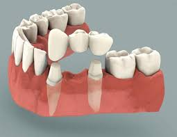 dental-bridge-illustration