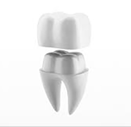 dental-crown-model