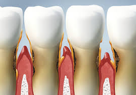 gum-disease-plaque-illustration